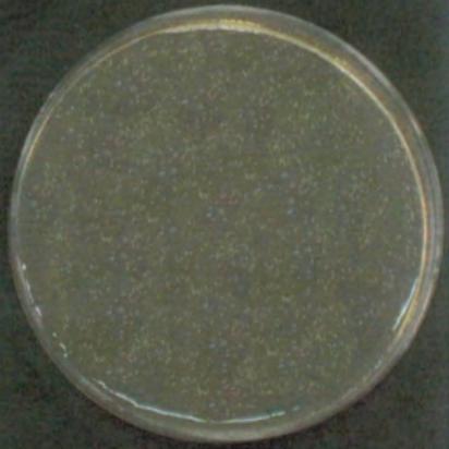 STAPHYLOCOCCUS AUREUS (before)